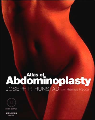 Atlas of Abdominoplasty (Techniques in Aesthetic Plastic Surgery)